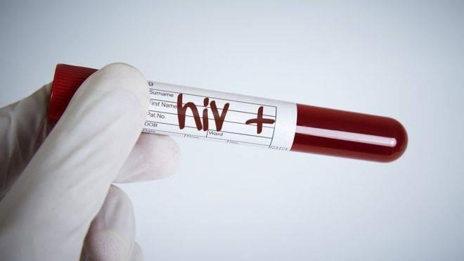 Estudio confirma que no hay riesgo de transmisión del VIH si se toman antirretrovirales